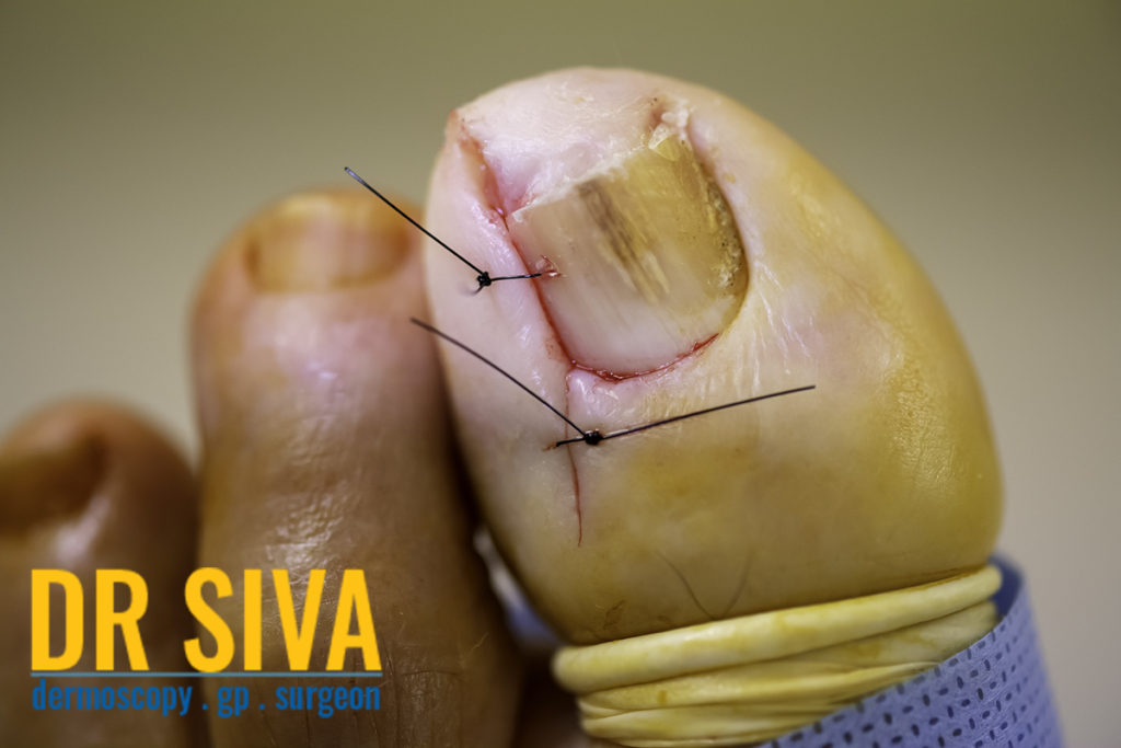 Infected ingrown toe nail
