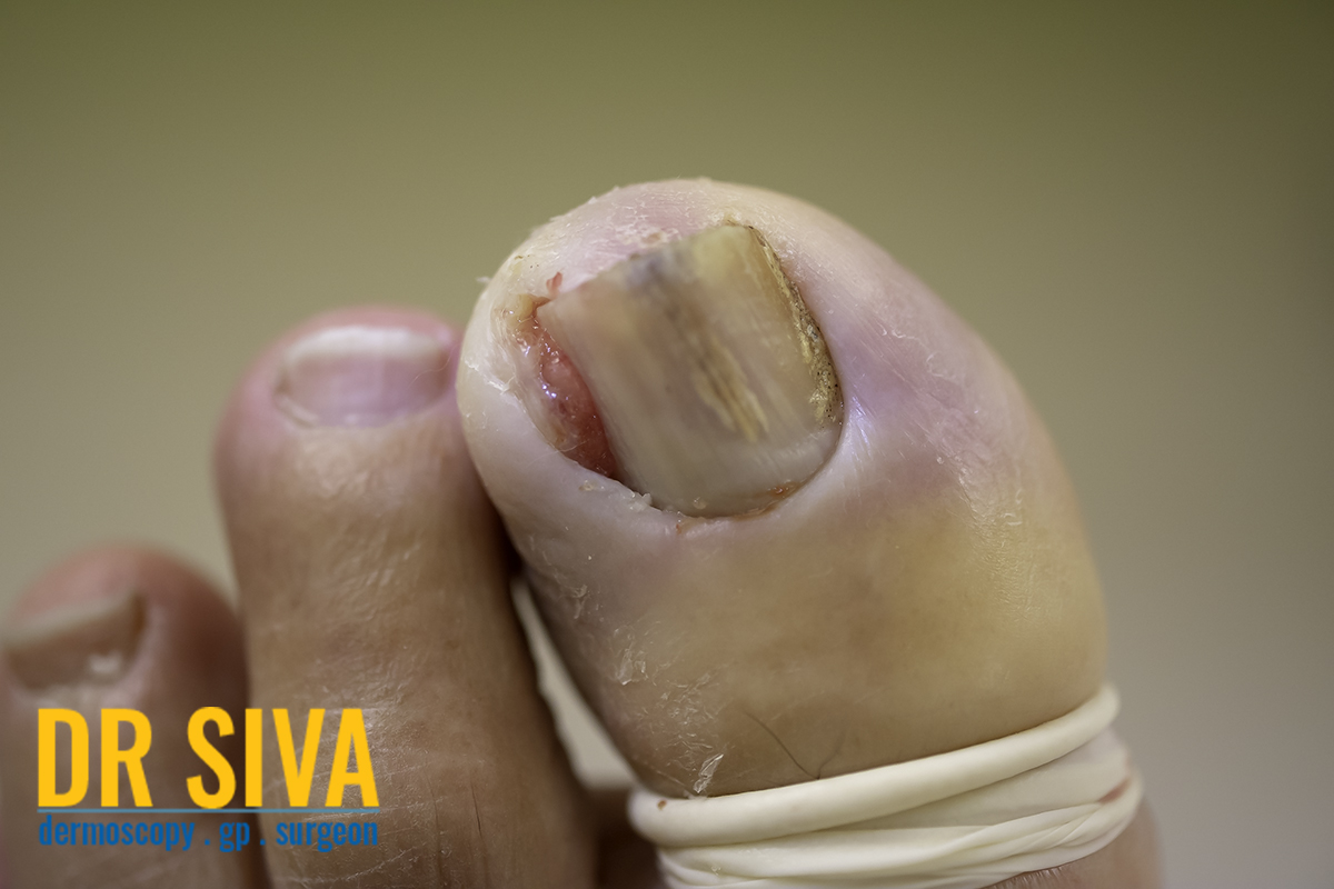 Infected ingrown toe nail before the operation