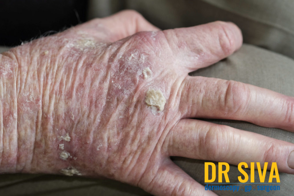 Actinic Keratosis Hands Picture
